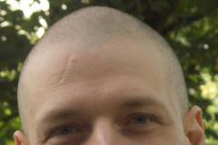 Aperçu crane rasé, juin 2009